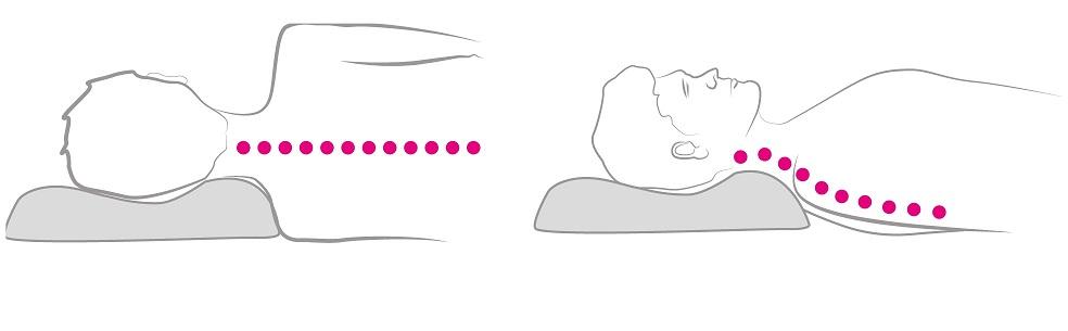 Správna poloha krčnej chrbtice